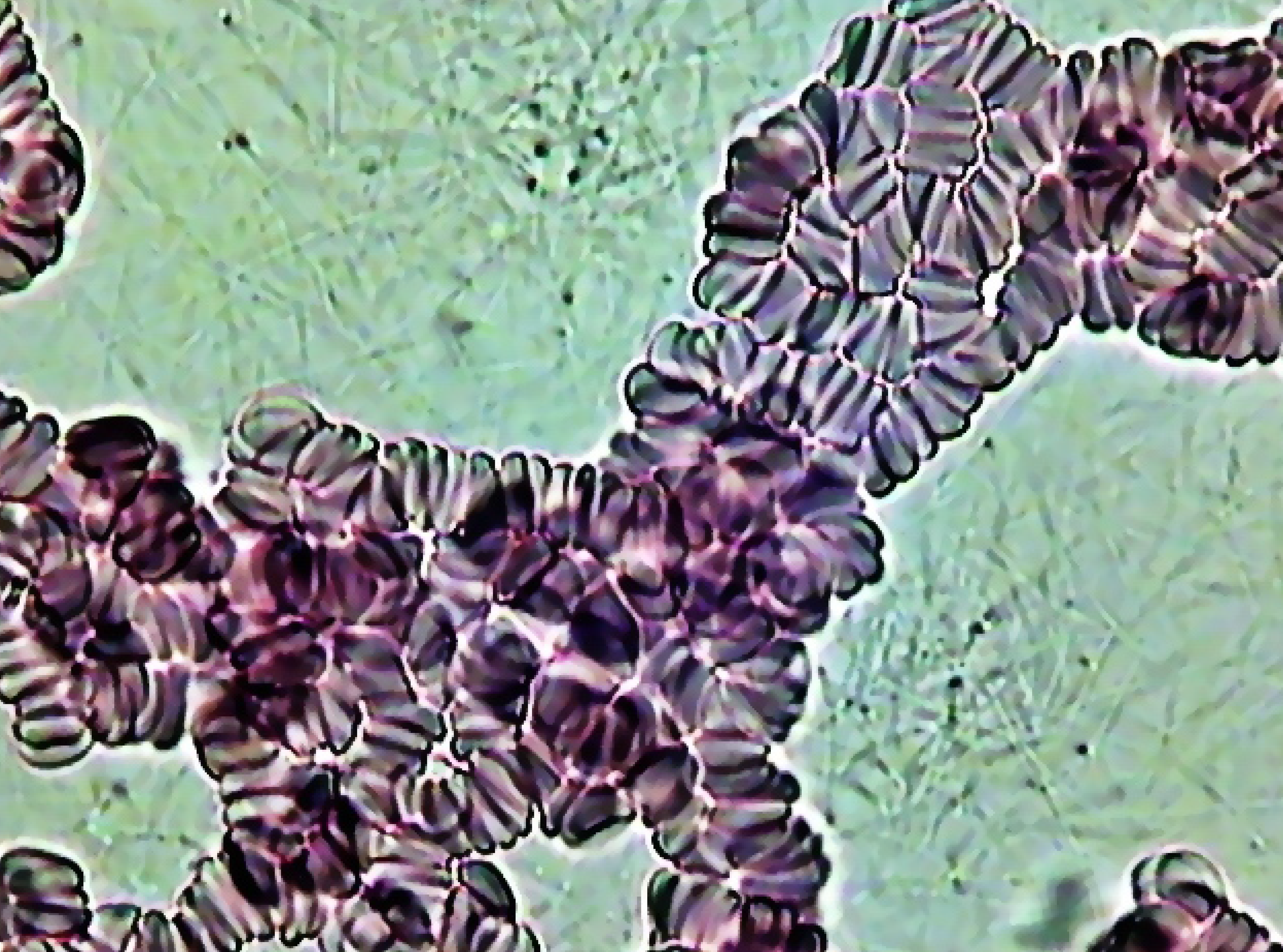 Спикулы фибриногена